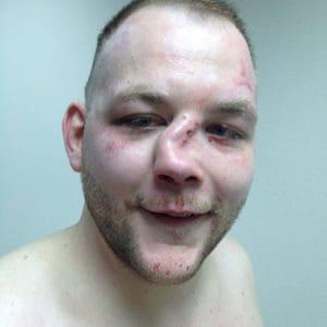 horribly broken nose from street fight